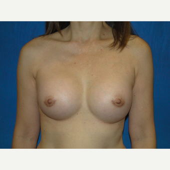 Breast Augmentation with 300 cc Silicone after 3776091