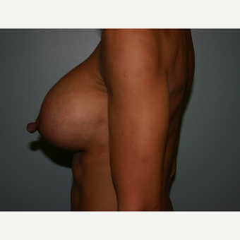 Breast Augmentation after 3561987