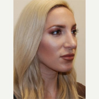 25-34 year old woman treated with Silikon 1000 for Non-Surgical Revision Rhinoplasty.
