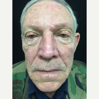 65-74 year old man treated with Facial Reconstructive Surgery after 3288330
