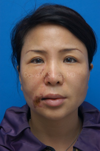 Scar Removal before 1895510