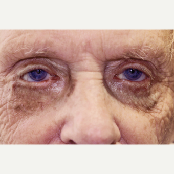 87 year old woman treated with Ectropion Eyelid Surgery before 3151879