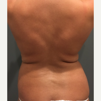 18-24 year old woman treated with Tumescent Liposuction before 3747550