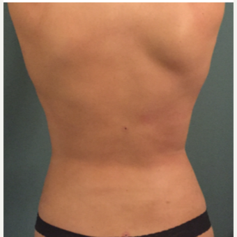18-24 year old woman treated with Tumescent Liposuction after 3747550