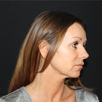 45-54 year old woman treated with Lower Face Lift before 3239193