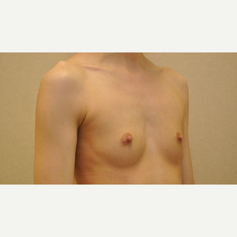 25-34 year old woman treated with Breast Augmentation before 3102911