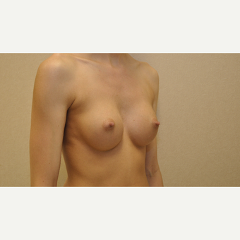 25-34 year old woman treated with Breast Augmentation after 3102911