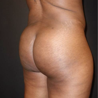 35-44 year old woman treated with Brazilian Butt Lift after 3372831