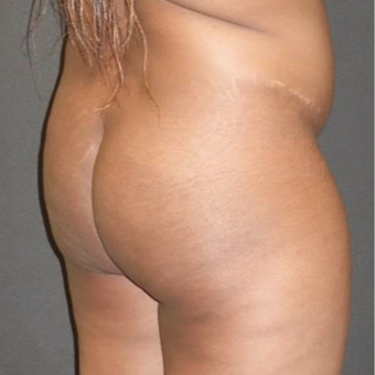 35-44 year old woman treated with Brazilian Butt Lift before 3372831