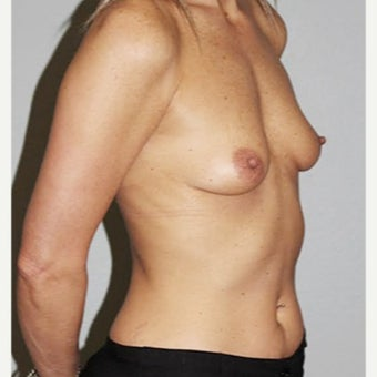 35-44 year old woman treated with Breast Augmentation before 2526683
