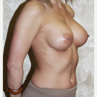 35-44 year old woman treated with Breast Augmentation after 2526683