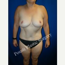 35-44 year old woman treated with Breast Reduction after 3006614