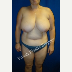 35-44 year old woman treated with Breast Reduction before 3006614