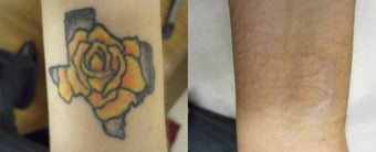 Tattoo Removal with PicoSure before 1248281