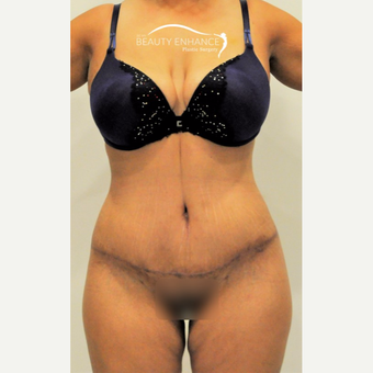Extended Tummy Tuck & BBL after 3823419