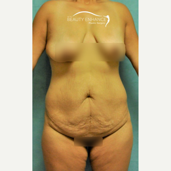 Extended Tummy Tuck & BBL before 3823419
