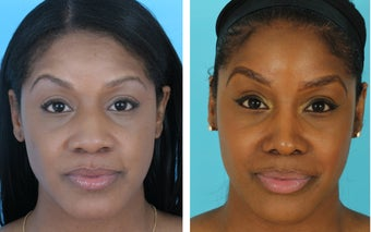 African American rhinoplasty before 1026931
