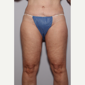55-64 year old woman treated with Liposuction after 3325232