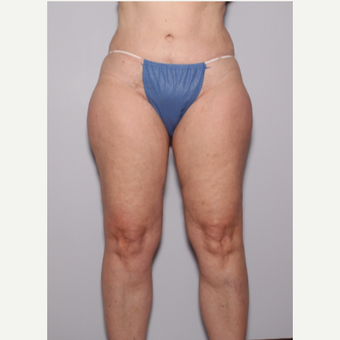 55-64 year old woman treated with Liposuction before 3325232
