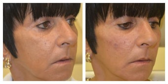 Middle Aged Female Treated for Middle Face Volume Loss and Cheek Contouring after 1367273