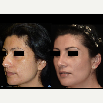 25-34 year old woman treated with Rhinoplasty before 3680392
