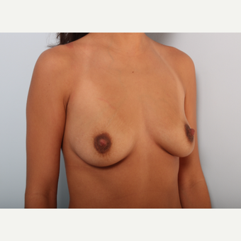 Breast Augmentation before 3425056