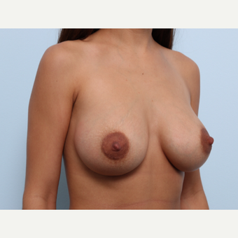 Breast Augmentation after 3425056