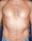 Pec Implants  after 887762
