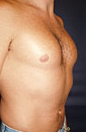 Pec Implants  887762