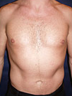 Pec Implants  before 887762