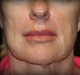 Facelift before 1108512