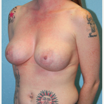 25-34 year old woman treated with Breast Augmentation before 3215218