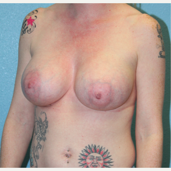 25-34 year old woman treated with Breast Augmentation after 3215218