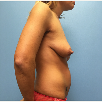 29 year old woman treated with Breast Lift with Implants before 3065408