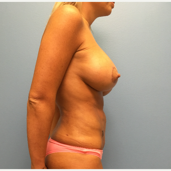 29 year old woman treated with Breast Lift with Implants after 3065408