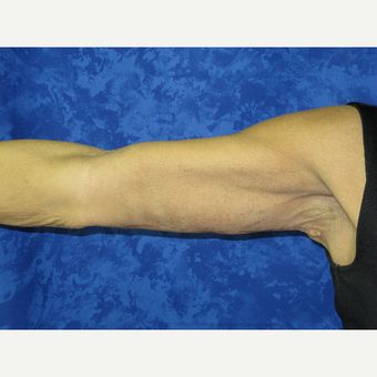 45-54 year old woman treated with Arm Lift after 3306153