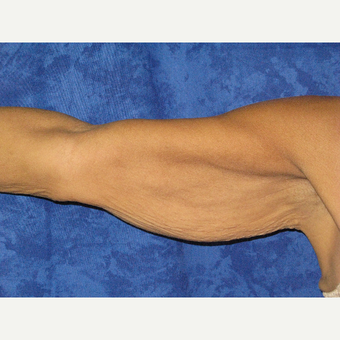 45-54 year old woman treated with Arm Lift before 3306153