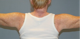 55-64 year old woman treated with ThermiTight after 2351084