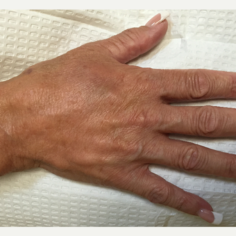 55-64 year old woman treated with Injectable Fillers after 3566289