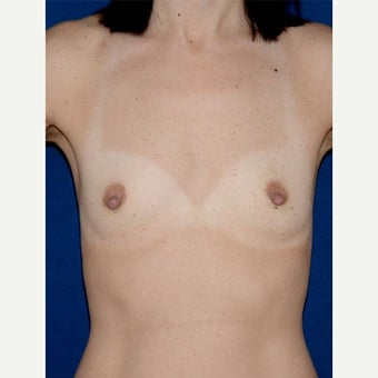 35-44 year old woman treated with Breast Augmentation, cohesive gel, teardrop shape, under muscle before 2008138