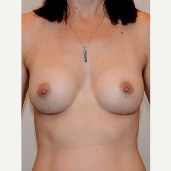 35-44 year old woman treated with Breast Augmentation, cohesive gel, teardrop shape, under muscle after 2008138