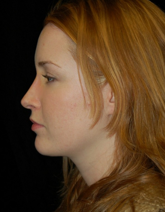 Nose Surgery - Rhinoplasty after 1253149