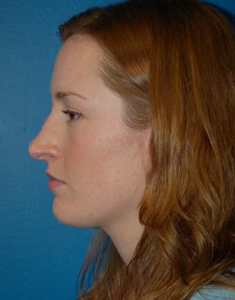 Nose Surgery - Rhinoplasty before 1253149