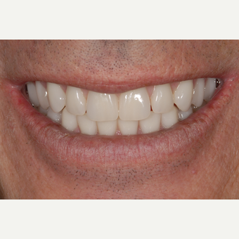 45-54 year old man treated with All-on-4 Dental Implants for  upper and lower jaws after 3531661