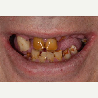 45-54 year old man treated with All-on-4 Dental Implants for  upper and lower jaws before 3531661