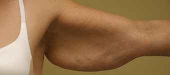 43 Year Old Female-Arm Lift