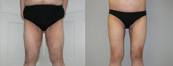 Inner thigh lift after massive weight loss before 1034257