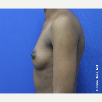 25-34 year old woman treated with Breast Augmentation before 3353319