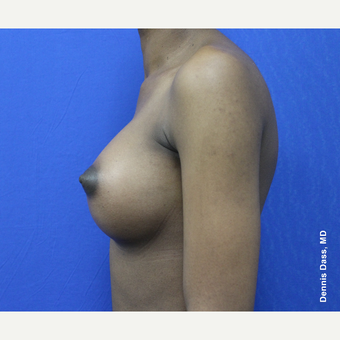 25-34 year old woman treated with Breast Augmentation after 3353319