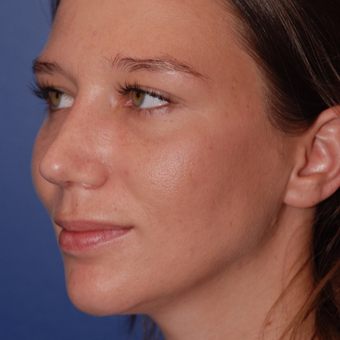 25-34 year old woman treated with Rhinoplasty after 3624004
